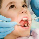 Причины кариеса зубов